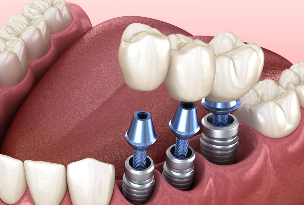 Are-Dental-Implants-Right-For-Me-