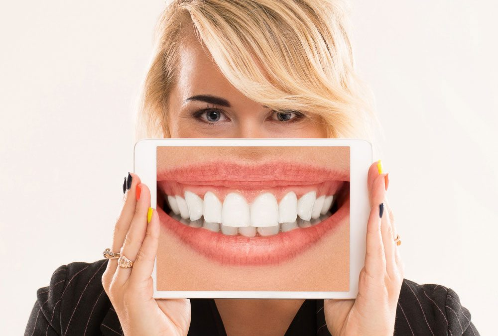 Is-Teeth-Whitening-Right-For-You